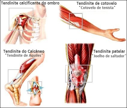 tendinite-1