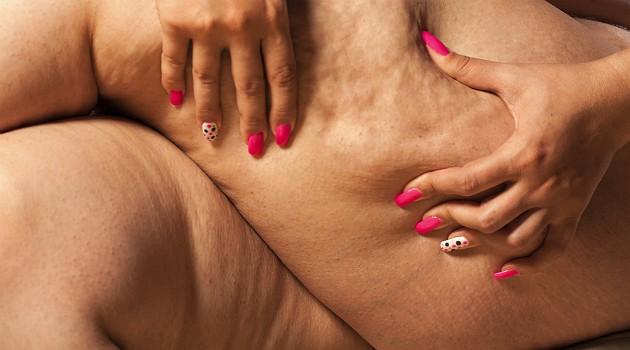 """A celulite deve ser combatida com o """"combo"""" exercício físico e dieta adequada"""